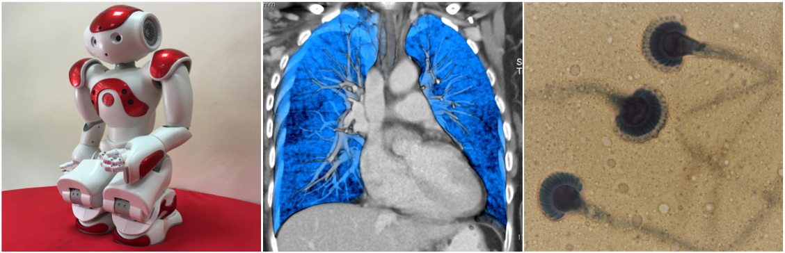 LEFT: The use of humanoids for augmentation of Rehabilitation programme.CENTRE: Three dimensional CT image reconstructed using VRT demonstrating colour contrast between lung parenchyma and the rest of intrathoracic structures. RIGHT: Aspergillus spp in lactophenol cotton blue slide mounts.