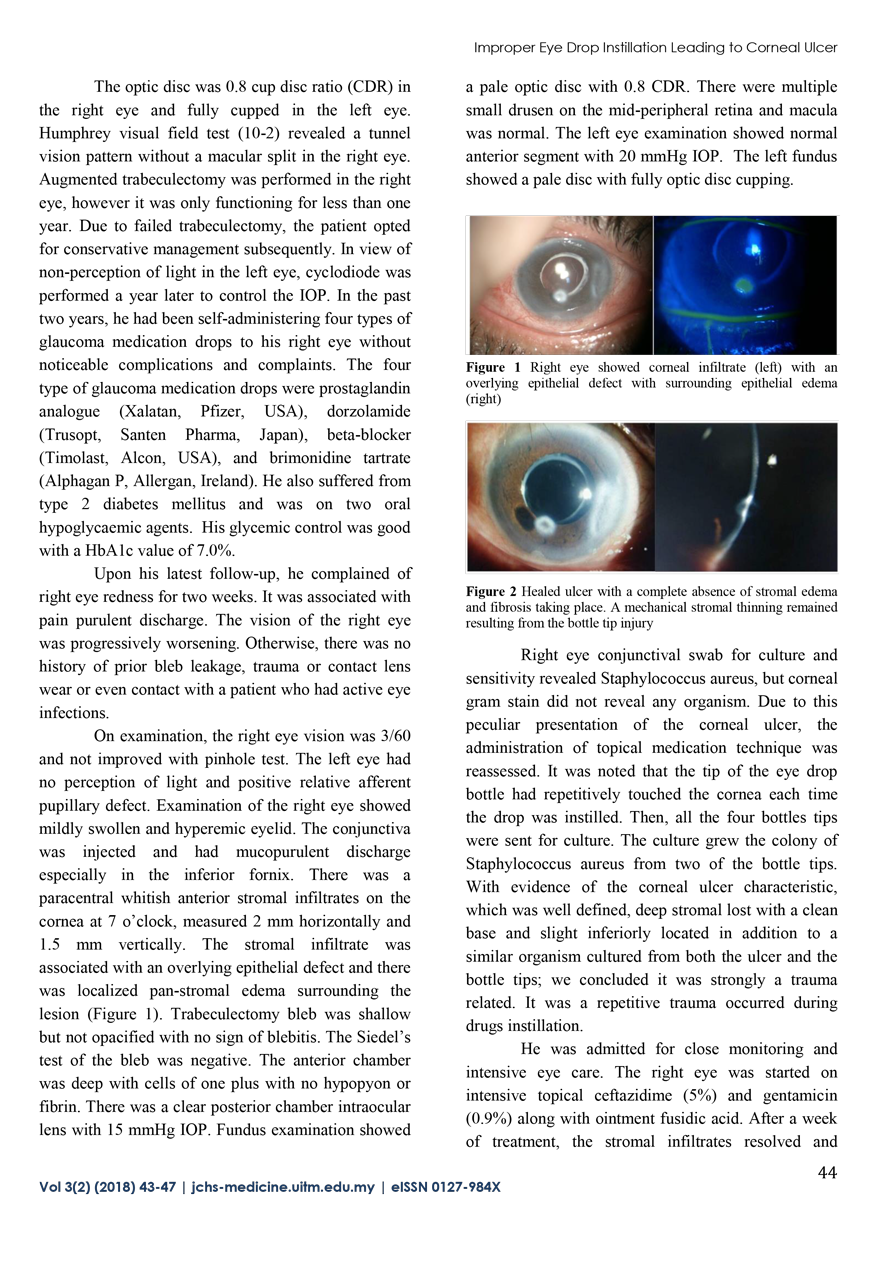 Improper Technique of Eye Drop Instillation Leading to Corneal Ulcer in a Visually Impaired Glaucoma Patient 2